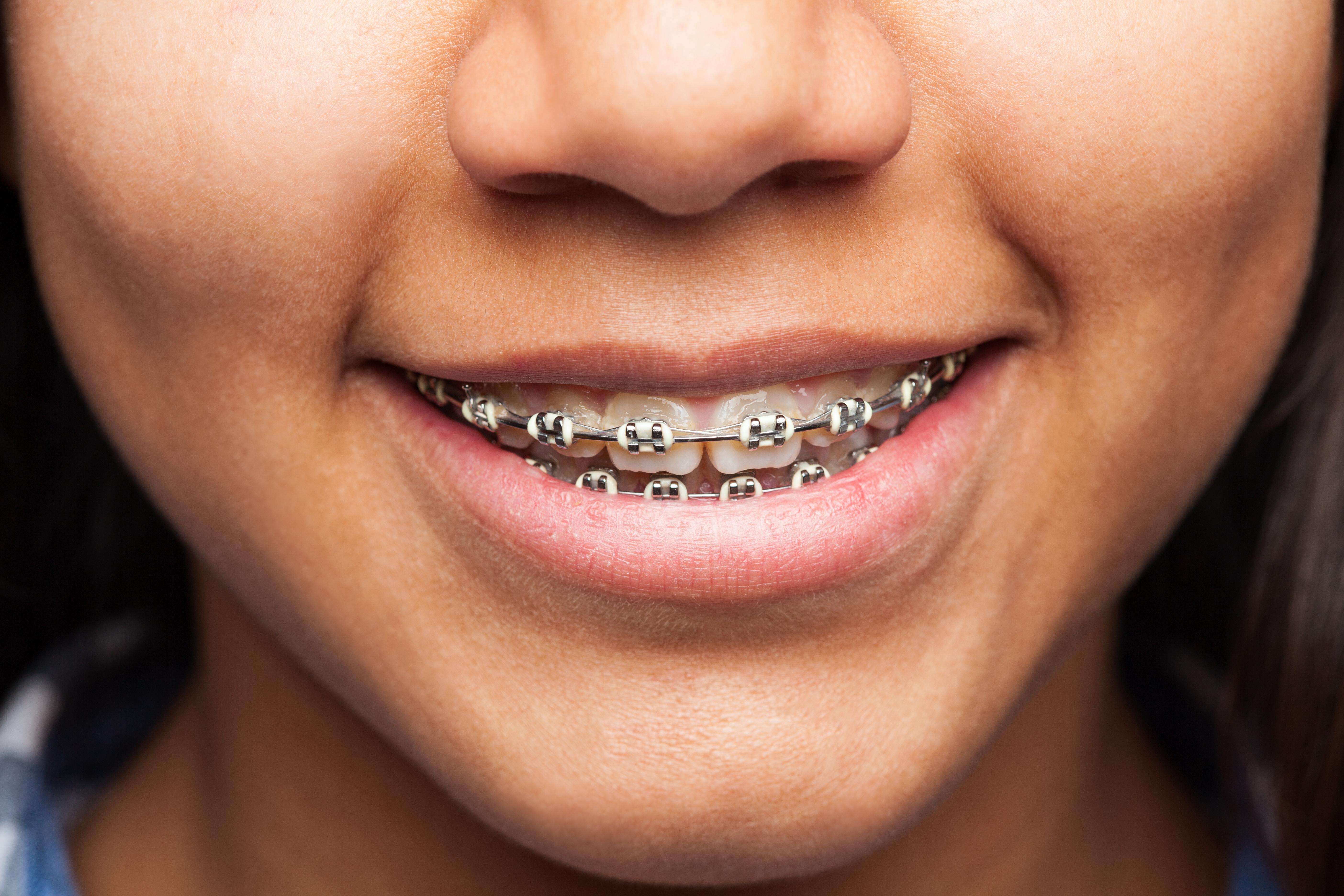 """Concurso """"Cuida tu Sonrisa"""" Vida Cámara y RedSalud sortearon descuentos en tratamientos dentales"""